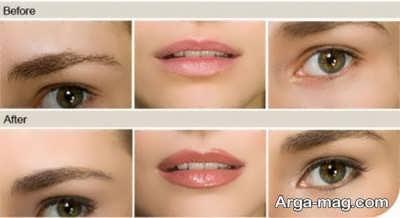 میکروپیگمنتیشن روی چشم و لب