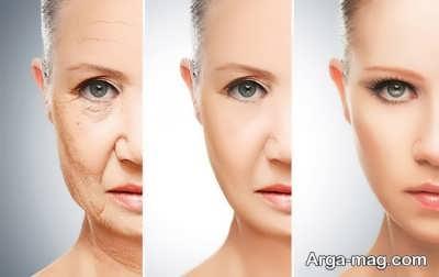 جوان کردن پوست صورت