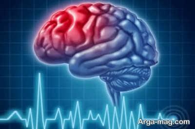 بررسی عوارض سکته مغزی