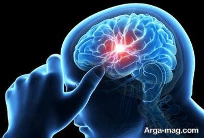 علایم هشدار دهنده سکته مغزی