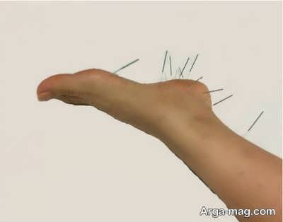 درمان درد پاشنه پا با طب سوزنی