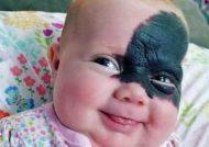 تولد نوزادی با صورتی عجیب + عکس