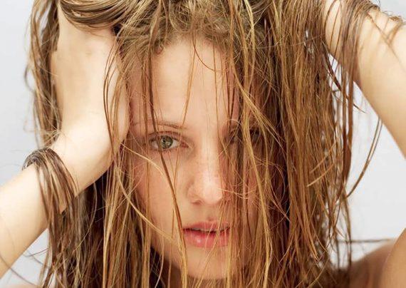 چرب شدن مو