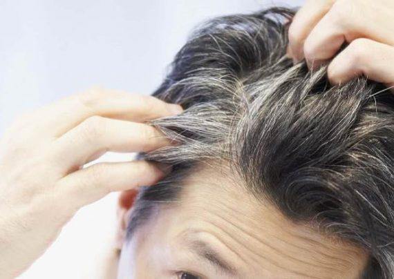 سفید شدن موهایتان را متوقف کنید