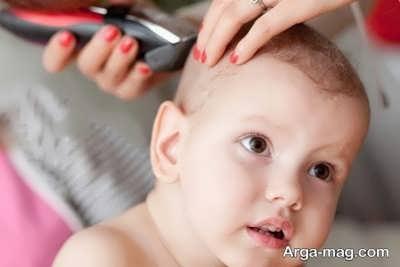 مشکلات ناشی از پوسته شدن سر نوزاد