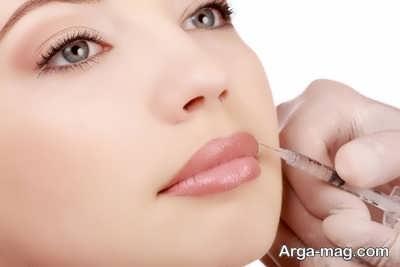 پروتز کردن لب ها با تزریق ژل