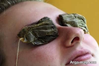 درمان گل مژه با چای سبز