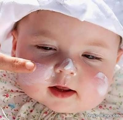 درمان آکنه صورت نوزاد