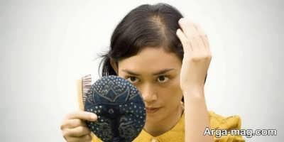 ریزش مو در نوجوانی