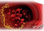 کاهش کلسترول بد خون