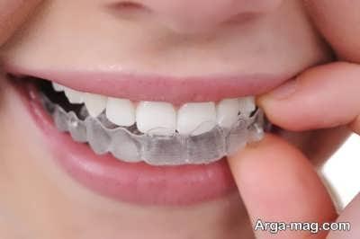 بازسازی لبخند
