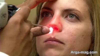 درمان ورم صورت