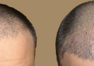بهترین روش کاشت مو