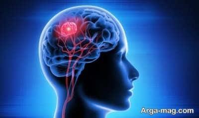 رفع تومور مغزی