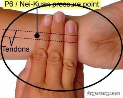 استفاده از طب فشاری برای درمان حالت تهوع