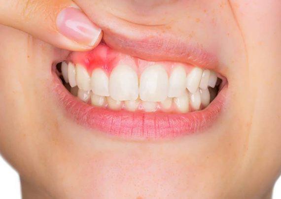 درمان خانگی آبسه دندان