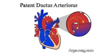 راهکار های پزشکی برای سوراخ های قلب نوزاد