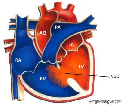 علائم سوراخ بین دو بطن قلب نوزاد