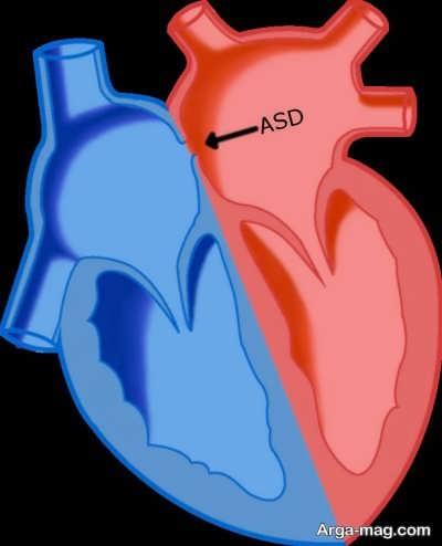 سوراخ بین دو دهلیز قلب نوزاد