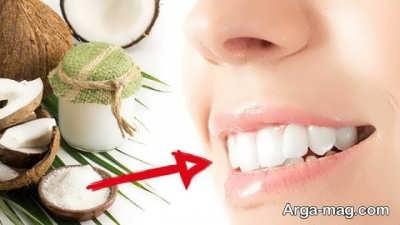 جرم زدایی دندان با روغن نارگیل