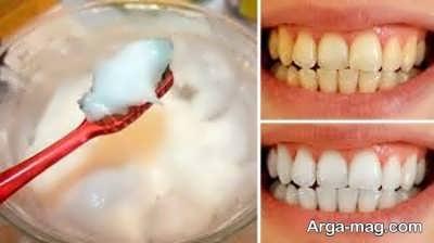 خمیر جوش شیرین برای سفیدی دندان ها