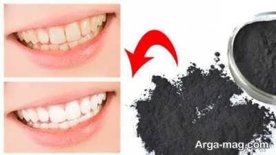 تمیزی دندان با زغال فعال