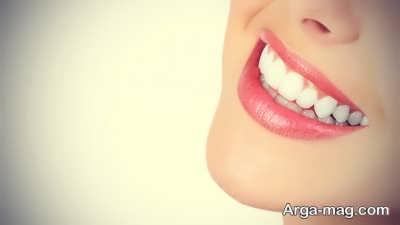 اصلاح طرح لبخند با سفیدی دندان ها