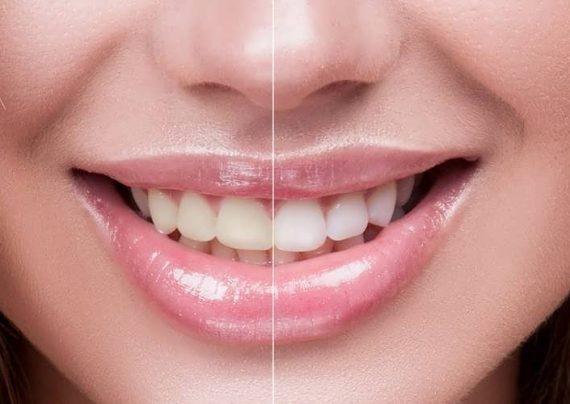روش های سنتی سفید کردن دندان