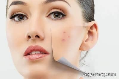 شفافیت پوست و پاکسازی