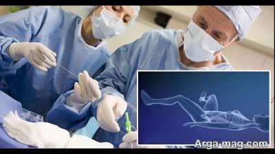 جراحی تغییر جنسیت
