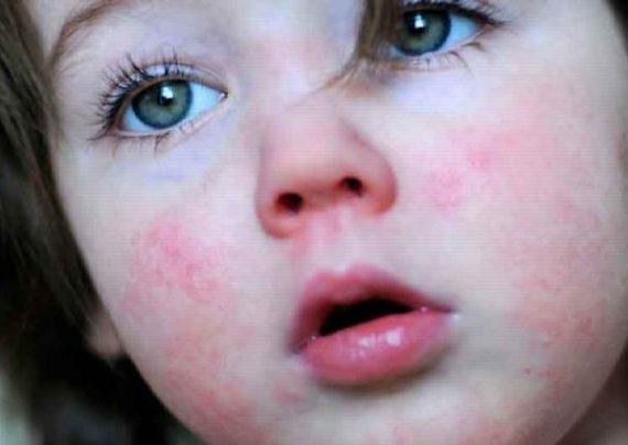 علائم و روش تشخیص مخملک و روش های درمان مخملک