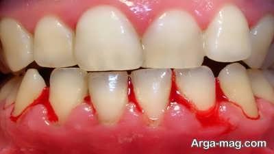 تعبیر خونریزی دندان در خواب