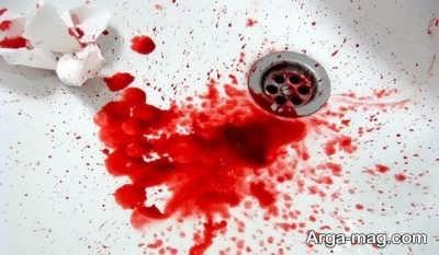 تعبیر دیدن خون از دیدگاه معبران مختلف