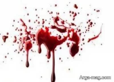 دیدن خون در خواب دارای چه تعابیری است؟