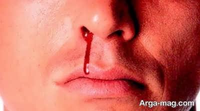 تعبیر خواب خونریزی بینی