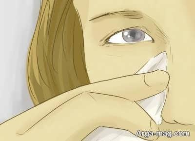 رفع گودی کاسه چشم با یخ و چای کیسه ای