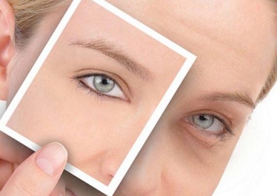 رفع گودی کاسه چشم