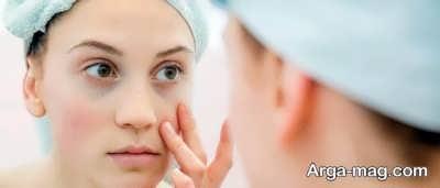 روش هایی برای از بین بردن گودی کاسه چشم ها