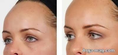 از بین بردن سیاهی و گودی چشم