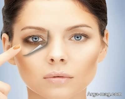 درمان های طبیعی برای گودی کاسه چشم