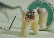 عوامل پوسیدگی دندان