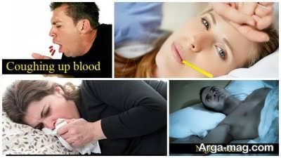 نشانه های بیماری سل