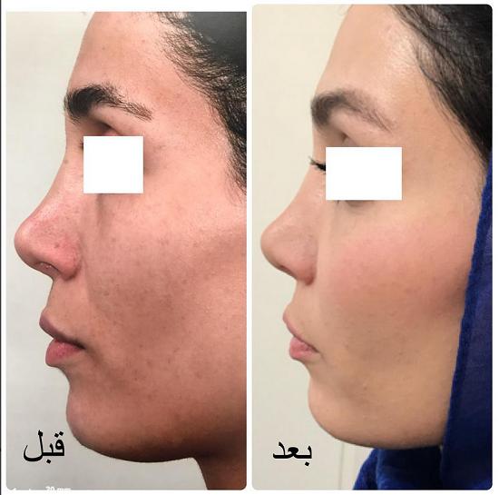 تزریق چربی به پوست صورت