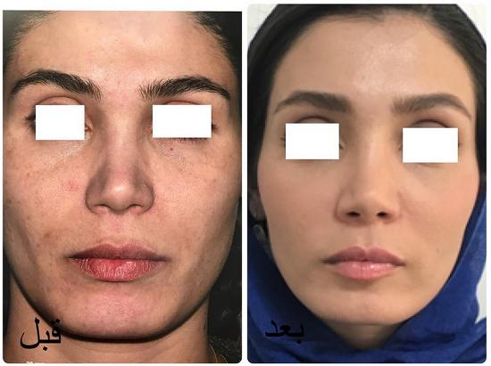 فرم دهی به پوست صورت با تزریق چربی