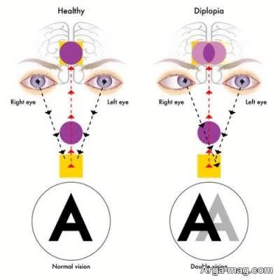 علل  دوبینی, چشم