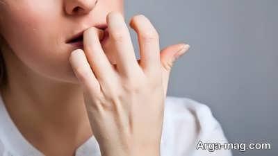 درمان وسواس با فلوکستین