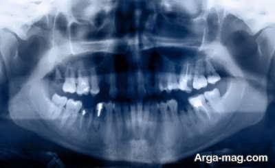 انجام رادیوگرافی برای دندان