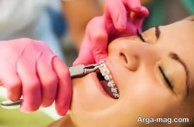گذاشتن براکت دندان