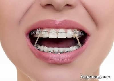 عبور دادن سیم از روی دندان ها
