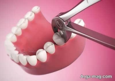 تعبیر کشیدن دندان در خواب از دیدگاه معبران مشهور